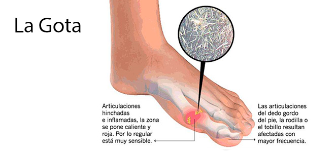 sintomas acido urico dolor talon acido urico que es bueno acido urico alto y dolor de rodillas